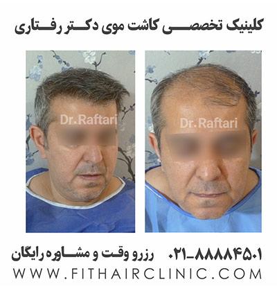 نمونه کاشت موی طبیعی