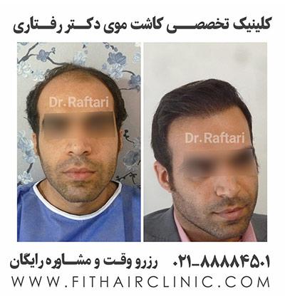کاشت موی طبیعی دکتر رفتاری
