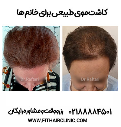 کاشت موی بانوان
