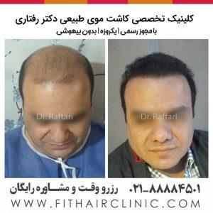 کاشت موی طبیعی ایران