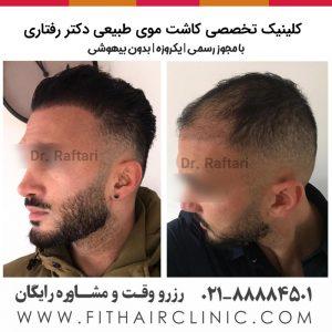کاشت موی عربی