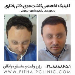 کاشت موی ایران