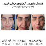 کاشت ابروی ایران