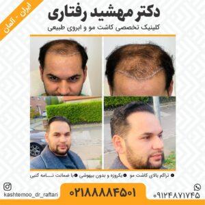 Haartransplantation Kosten